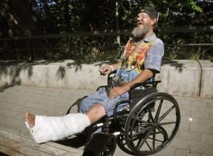Ricky Frew, a 58-year-old homeless man, recently had surgery on his left leg at Good Samaritan Regional Medical Center.