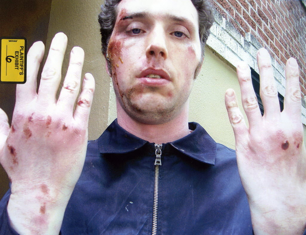 A photo of Daniel Halsted's injuries after an encounter with Portland police early June 17, 2008. Halsted was struck by a Taser five times and fell to the ground, suffering facial fractures and abrasions to his head and hands.